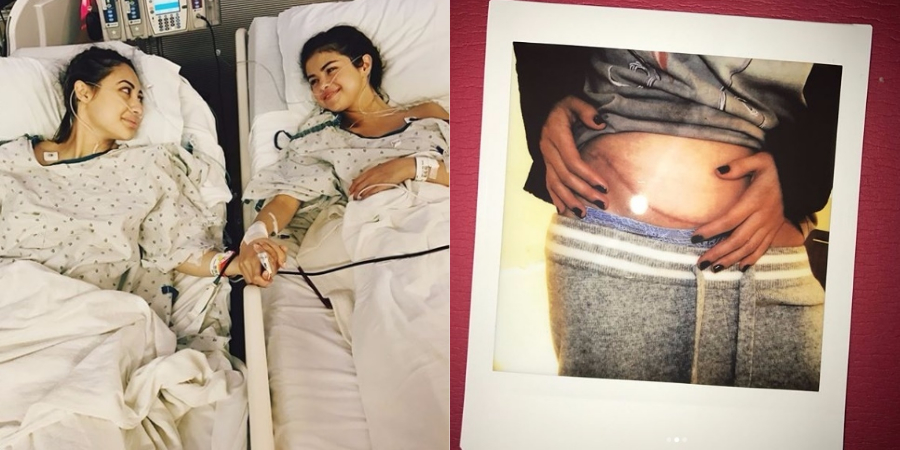 Selena Gomez teve complicação quase fatal após transplante, diz amiga que foi doadora