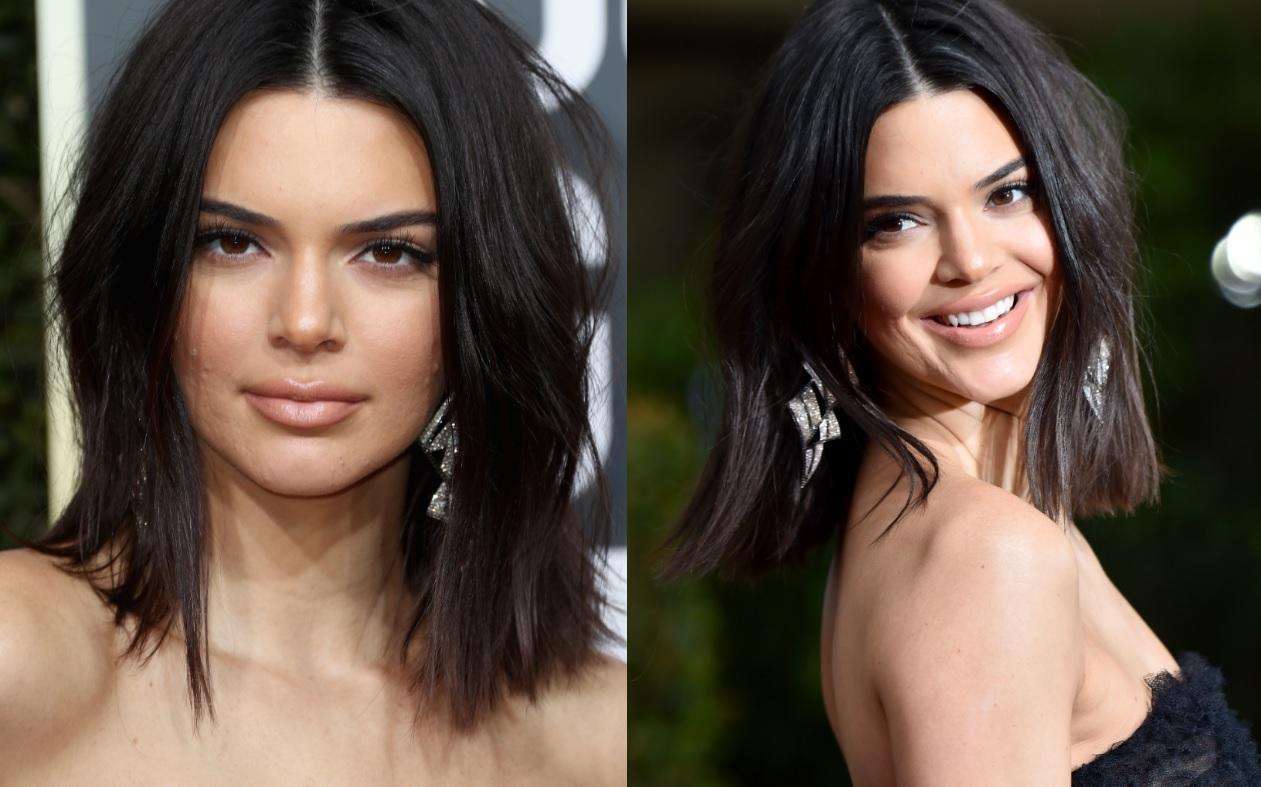 """""""Globo de Ouro"""": Acne no rosto chama atenção e Kendall Jenner responde da MELHOR forma"""